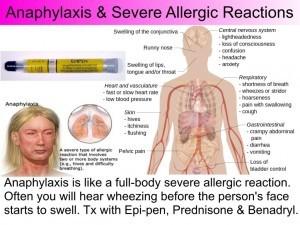 anaphylaxis-300x225.jpg